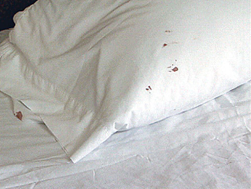 How do you know if your have bed bugs 7 tell tale signs for Bed bugs on sheets
