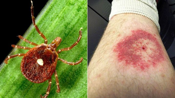 What Do Ticks Look Like? 23 Pictures of Ticks in All Life